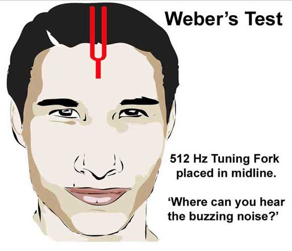A normal result is when the patient can hear the tuning fork tone in both ears equally.