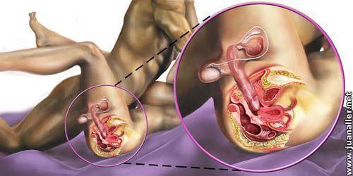 Como se ve el pene dentro de la vagina