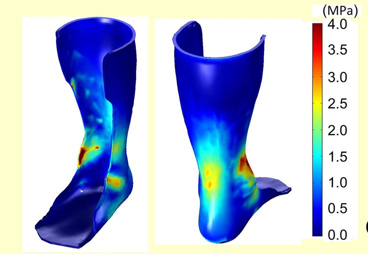 Transforming Orthotics with 3D Printing and Industry 4.0