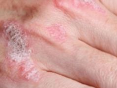 Zázračná rostlinka, která léčí ekzém, lupenku, dermatitidu a další kožní alergie