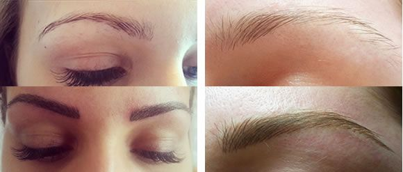 Semi permanent eyebrows healing stages make-up is the simple procedure which helps people attains the look they desire. In this technique permanent pigments are implanted into the dermal layer of the...