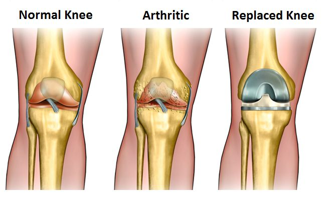 Researchers Find Knee Replacement Surgery May Have Minimal Effect on Quality of Life and Unattractive Economic Outcomes - http://www.orthospinenews.com/researchers-find-knee-replacement-surgery-may-have-minimal-effect-on-quality-of-life-and-unattractive-economic-outcomes/