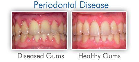 bone defects periodontal | Periodontal Treatment and Gum Disease