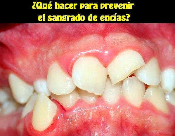 ¿Qué hacer para prevenir el sangrado de encías? | OdontoFarma