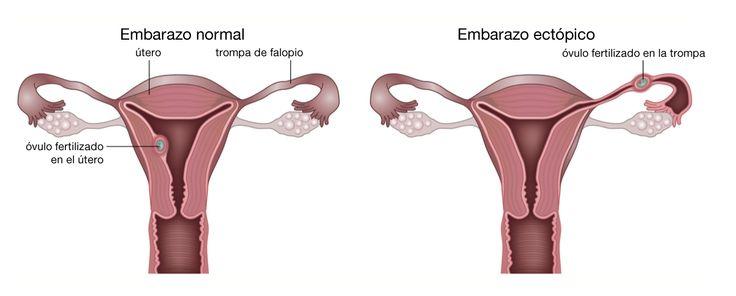 embarazo-ectopico-esquema.png (1202×485)