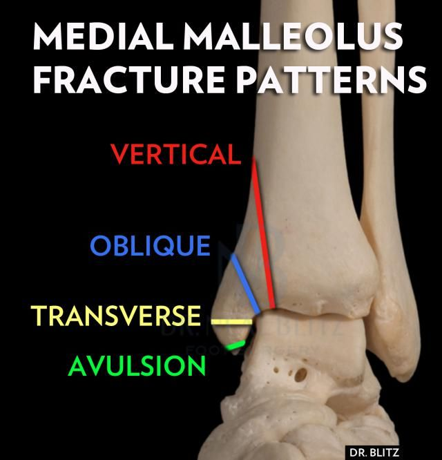 Kinds Of Medial Malleolus Fractures | Broken Ankle