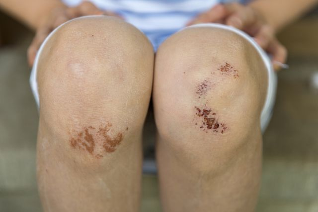 First Aid for Road Rash and Abrasions