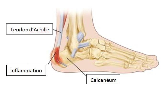 Maladie de Sever ou apophysite calcanéenne La maladie de Sever est une inflammation douloureuse de la plaque de croissance (apophyse) de l'os derrière le talon, à l'endroit où le tendon d'Achille s'insère. Il s'agit de la cause la plus fréquente de douleur au talon chez l'enfant.