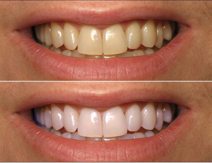 Evde Kendiniz Bu Doğal Yöntemle Dişlerinizi Bembeyaz Yapabilirsiniz Hem de Sadece Her Evde Bulunan 3 Malzeme ile - Kadınlar Sitesi - Kadınlar Sitesi