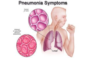 Pneumonia: Symptoms, Causes, Treatment & Vaccine