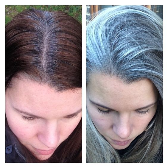 Best Gray Hair Transition