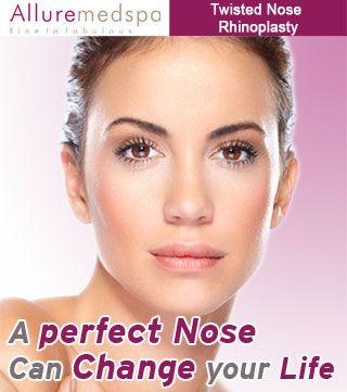 Rhinoplasty-india.com is Leading Rhinoplasty Center based on Mumbai, India Providing Twisted Nose Rhinoplasty Surgery (Crooked Nose Rhinoplasty) to correction of twisted or crooked Nose by Expert Rhinoplasty Surgeon Dr. Milan Doshi at Alluremedspa.