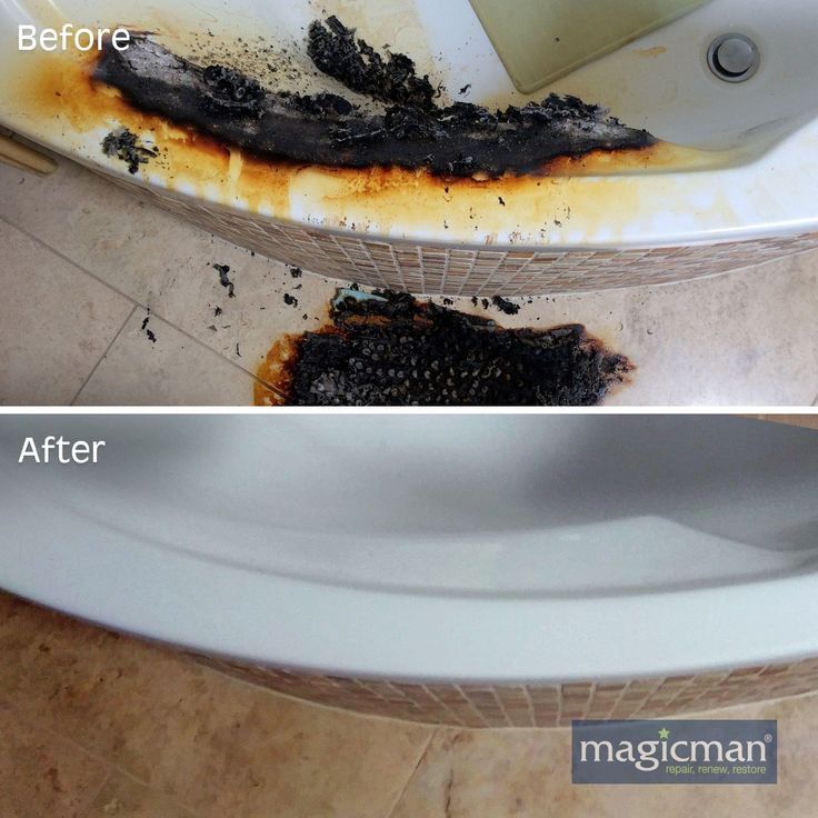 Extreme burn to a bathtub after candles left burning along the rim. This is a view from above to show the floor had to be repaired as well as the bath. Brilliant job by Magicman. #bath #extreme # severe #burn #fire #damage #restore #magicman