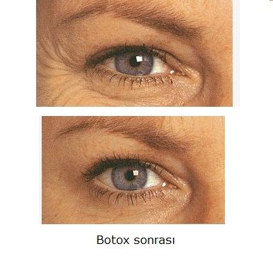 Botox yan etkilerine dikkat! Botox uygulama sırasında yanlışlıkla göz kapağı kasına uygulanırsa, geçici kapak düşüklüğüne yol açabilir. Göz çevresine botox uygulamaları göz hekimleri, plastik cerrahlar, dermatologlar ya da medikal estetisyenler tarafından yapılmalıdır. #botox #gozcevresikirisikligi