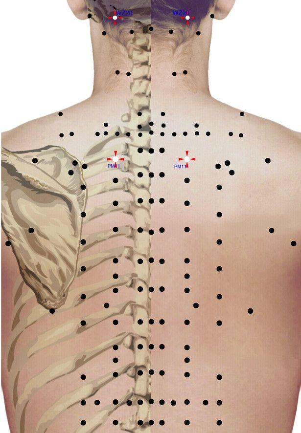 Punkty stymulacji metodą elektropunktury i akupunktury dla schorzenia: Skłonność do katarów i zaziębień