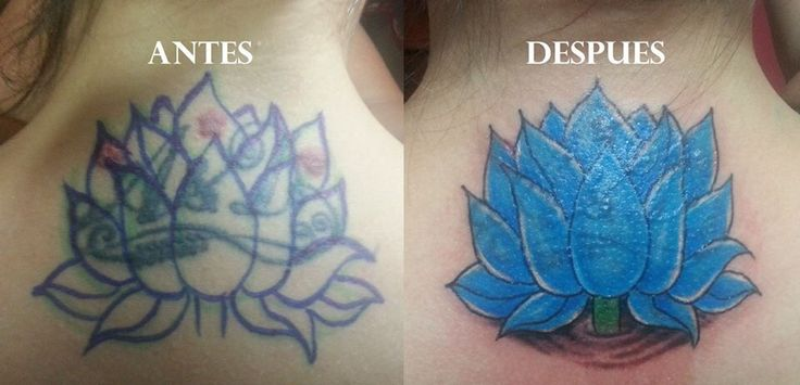 Cover Up Flor de loto #blaster_tattoo