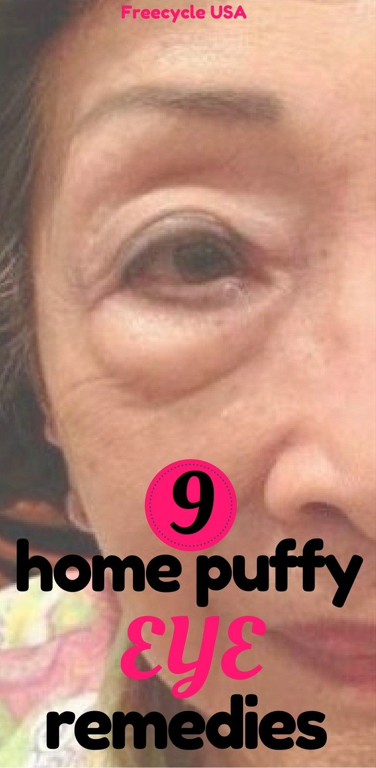 9 Home Puffy Eye Remedies - http://www.freecycleusa.com/9-home-puffy-eye-remedies/