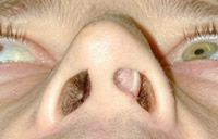 Deviated Nasal Septum and Sleep Apnea