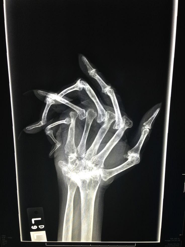 0845349b770a7f37966be4b1a3cf854c x rays rheumatoid arthritis 52 best rheumatoid arthritis images on pinterest rheumatoid,Arthritis Memes
