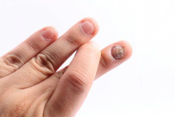 How To Get Rid Of Nail Fungus Under Artificial Nails Natural Remedies For Nail F Toenail Fungus Cure Toenail Fungus Remedies Toenail Fungus Home Remedies