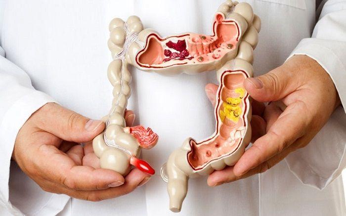 Πως σχετίζονται σπαστική κολίτιδα και ορμονικές ανισορροπίες συνήθως απευθύνονται στον γνωστό τους γαστρεντερολόγο για να βρουν λύση. Η ιστορία τις περισσότ