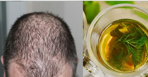 3 Simple Homemade MIXES for Hair Loss Controlling and Regrowth of Lost Hair