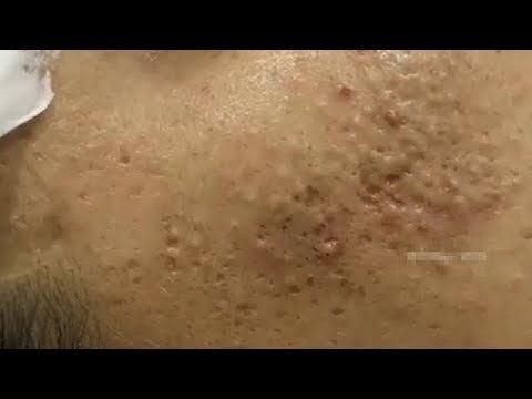 Acne, Blackheads And Pimples Removal Cystic Acne Treatment With Relaxing Music #153 Stubborn Milia Extractions with Dr Pimple Popper …
