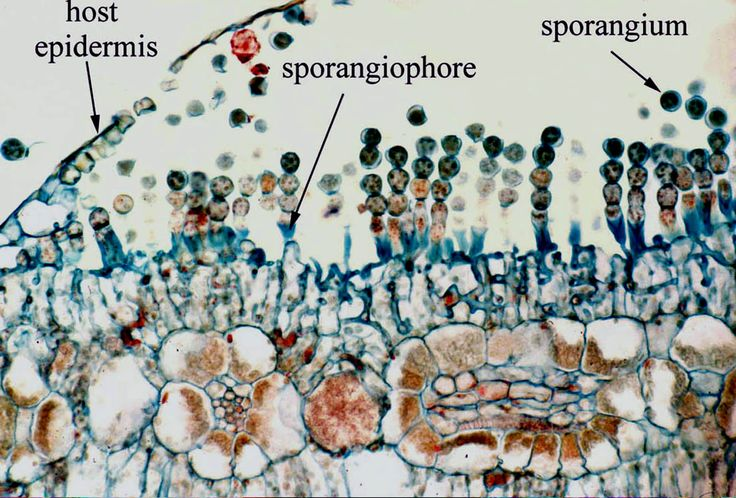 Albugo candida - asexual sporangia from host. Sporangia are borne in chains at apex of a short,clavate, usually unbranched sporangiophore, forming a limited sorus beneath the host epidermis and exposed by its rupture. The mycelium is intercellular except for small, knoblike haustoria. The sporangia dry to a white powder and are disseminated by wind, germinating by swarmspores.