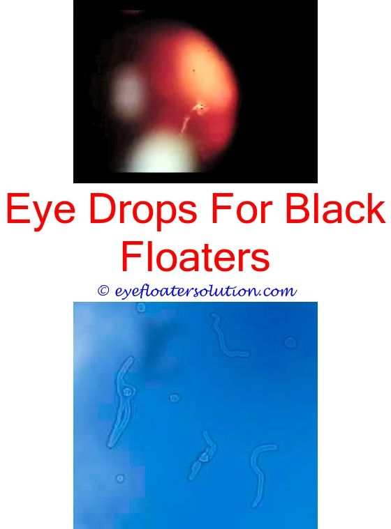 I cured my eye floaters