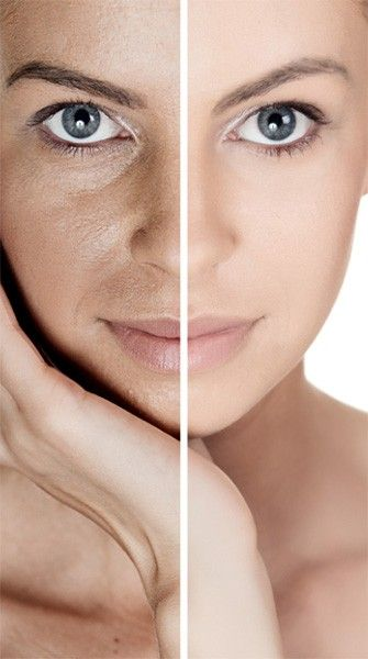 Acne scars and dark spots: What you need to know for clear skin via @stylelist | http://aol.it/1pj7nS5