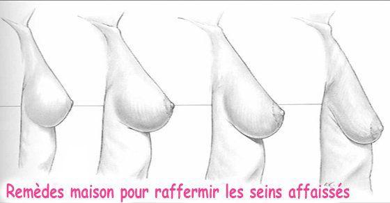 Toute femme veut avoir des seins parfaitement en forme tout au long de sa vie. Malheureusement, cela est impossible dans la plupart des cas. L'affaissement dela poitrineest un processus naturel qui se produit avec l'âge dans lequel les seins perdent leur souplesse et leur élasticité. Bien que l'affaissement des seins commence souvent après qu'une femme …