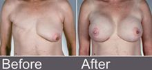 Breast Cancer Care Centres in Bangalore