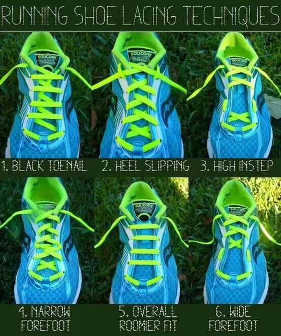 : Running shoe lacing techniques for different foot issues .... #neverknew