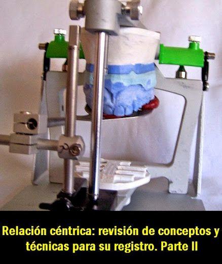 PDF: Relación céntrica: revisión de conceptos y técnicas para su registro. Parte II   OVI Dental