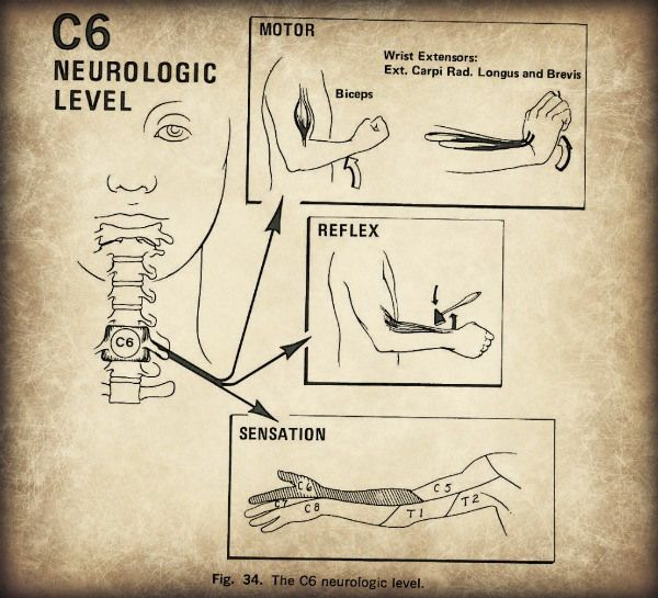Cervical Radiculopathy Neurological Signs