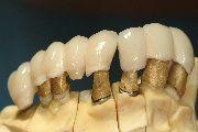 #Implantatbrücke als #Zahnersatz auf #Galvanokappen