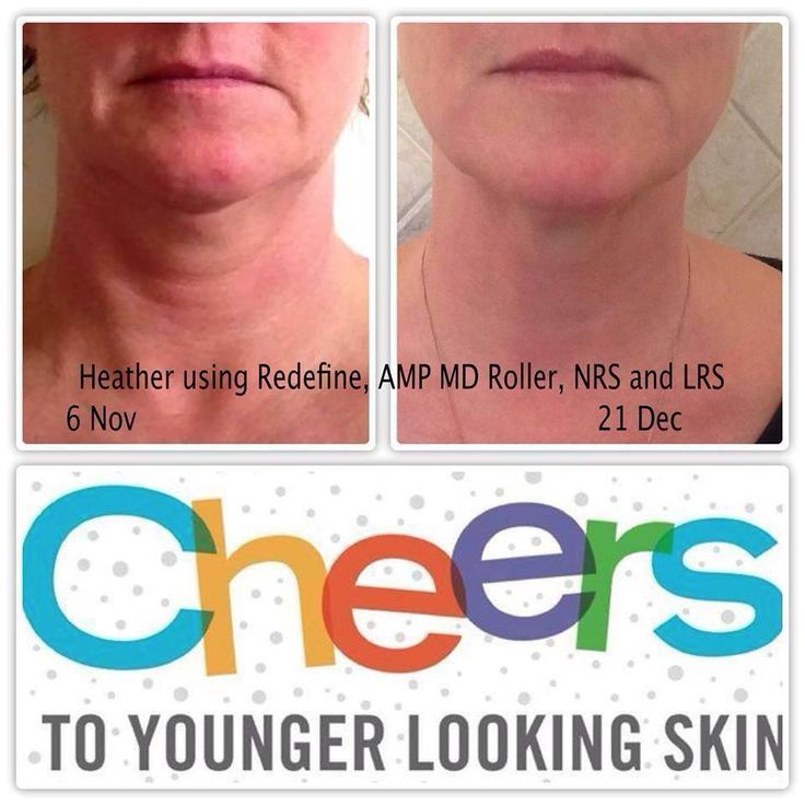 Tighten Up Your Neck And Face With Rodan Fields Redefine