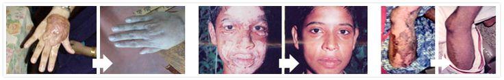 research this:  Treatment for Leukoderma, Vitiligo: Natural Treatment   Padanjali Ayurvedics