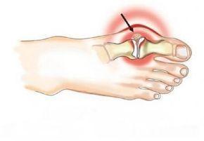 Эффективный метод Н.Н. Штаба избавит от болезненной шишки на ноге! — Жизнь под Лампой!