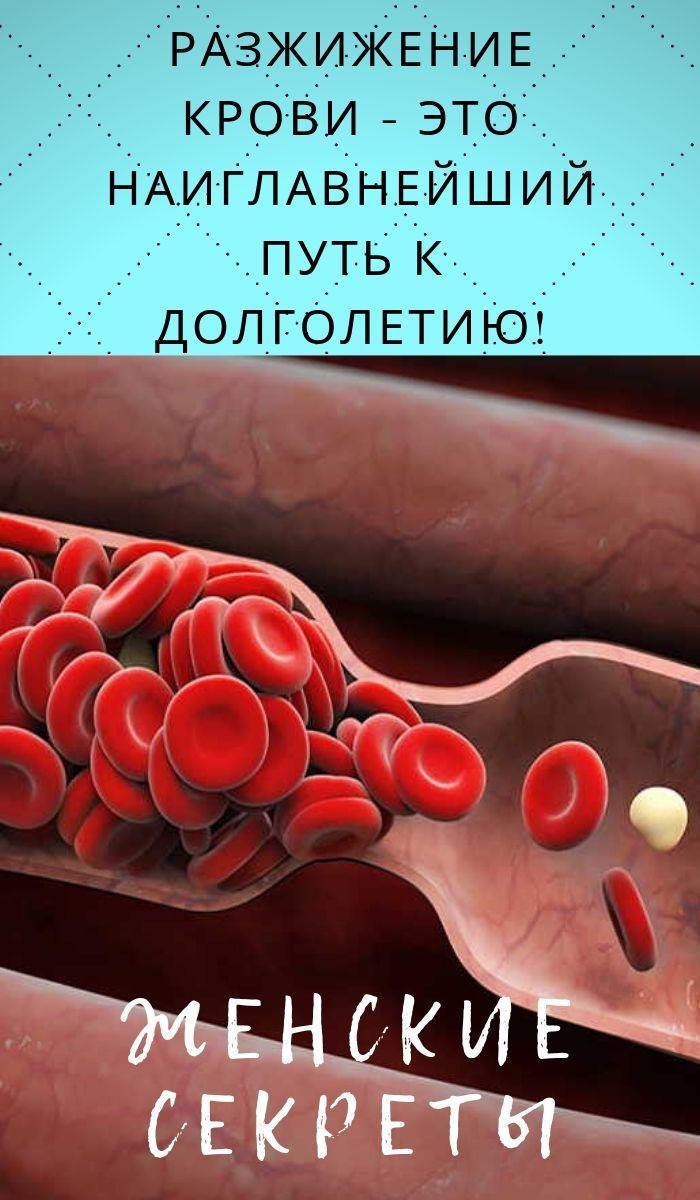 Cele mai eficiente medicamente pentru varice - o listă de tablete, creme și unguente