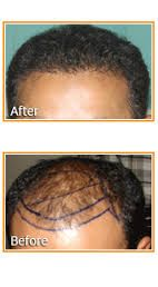 Hair transplant cost is the main reason why many people avoid to have a permanent solution for their bald scalps. Remember, hairs are not the only benefit that a hair restoration treatment provides you.