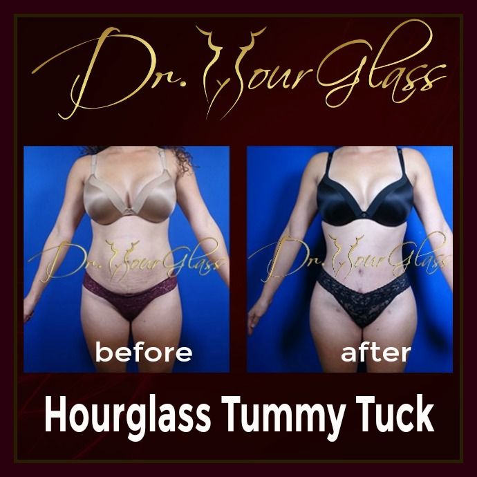 She's so much grateful about her excellent transformation after she underwent the Hourglass Tummy Tuck procedure by none other than Dr. Hourglass. Her result is a living proof that this tummy tuck technique really works if you want to achieve a flat tummy plus a sexier figure in no time.