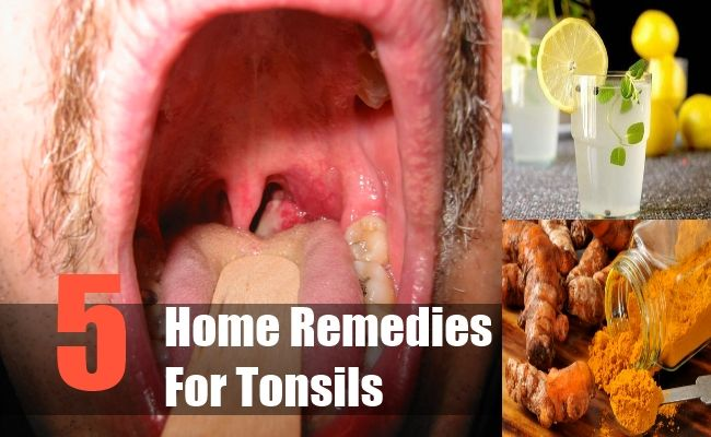Home Remedies For Tonsils