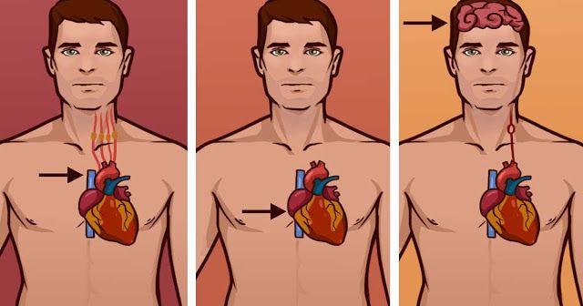 Un ataque cardíaco y un paro cardiaco, en muchas ocasiones pueden tener síntomas comunes, sin embargo, los otros síntomas que acompañan a estos dos tipos de padecimientos, así como la duración de estos, se diferencian
