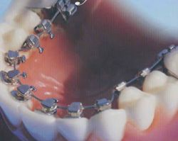 lingual braces @ the London dental studio where only you know you have them...  ;-)