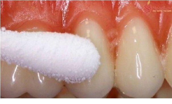 Ecco come sbarazzarsi del Mal di Denti in pochi minuti e in modo Naturale!