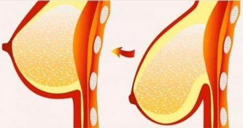8 conseils et solutions pour lutter contre la flaccidité et la chute des seins - Améliore ta Santé