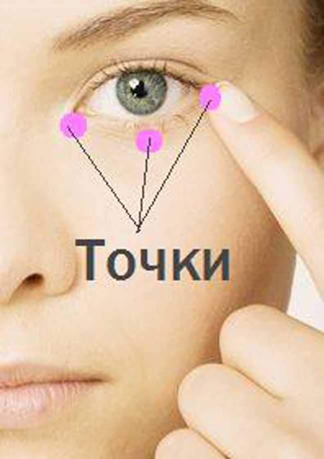 синяки мешки под глазами