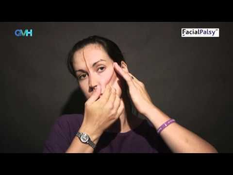 Facial Palsy DVD 1 - Management of Flaccid Paralysis - Cheek Taping - YouTube