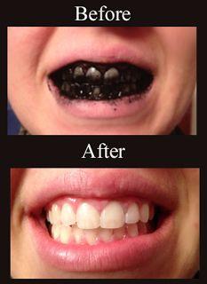 Το μυστικό της φυσικής λεύκανσης των δοντιών! - Νέα Διατροφής